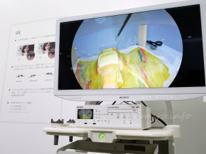Sony Olympus Medical Solutionsの4K手術内視鏡